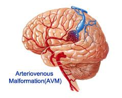 Top 10 Arteriovenous Malformation Specialists in India ...