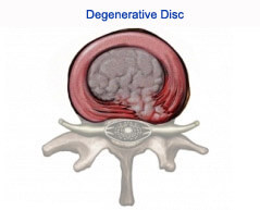 Degenerative Disc Disease | Spine & Neuro Surgery Hospital India