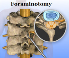foraminotomy surgery in india