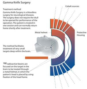 Affordable Gamma Knife Radiosurgery In India Low Cost