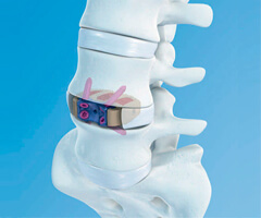 lateral lumbar interbody fusion treatment in india