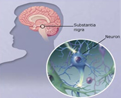 brain parkinson s disease