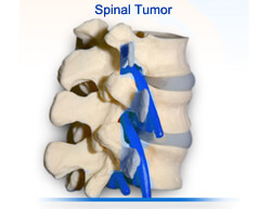 Spinal Tumors surgery in india