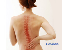 scoliosis surgery in india