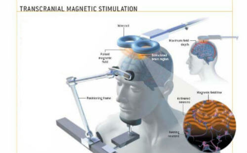 transcranial-magnetic-stimulation