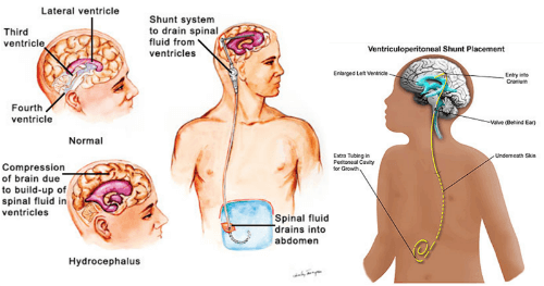 ventriculoperitoneal shunt india reviews: is it effective?, Skeleton