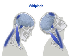 Whiplash surgery in india