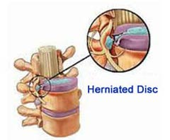 Herniated Disc Surgery in India