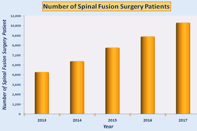 Low Cost Spinal Fusion Surgery in India