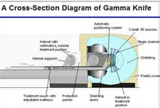 Lowest Price for Gamma Knife Radio Surgery Treatment in India