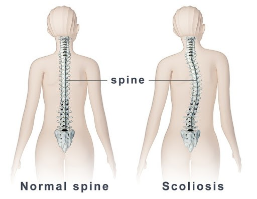 scoliosis and normal spine