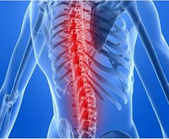 Top Hospitals Spinal Fusion Surgery in India